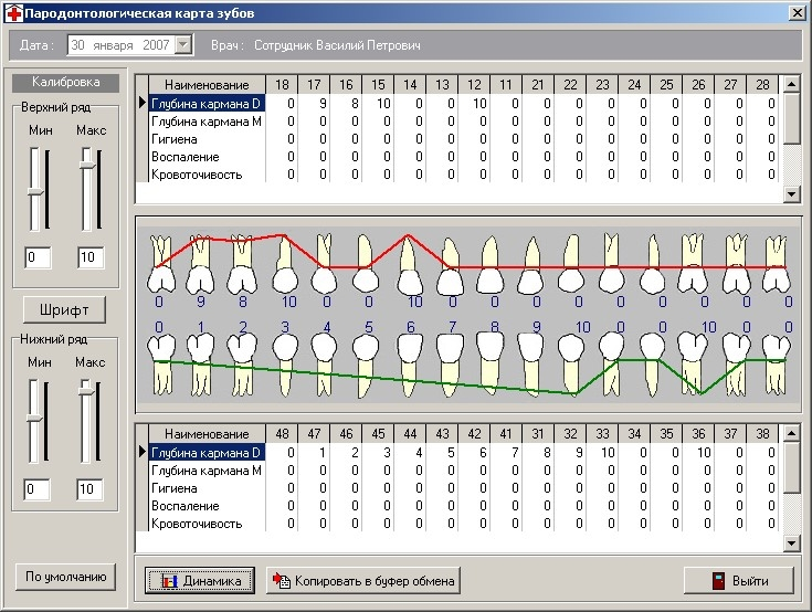 Заполнение пародонтологической карты зубов в DentExpert